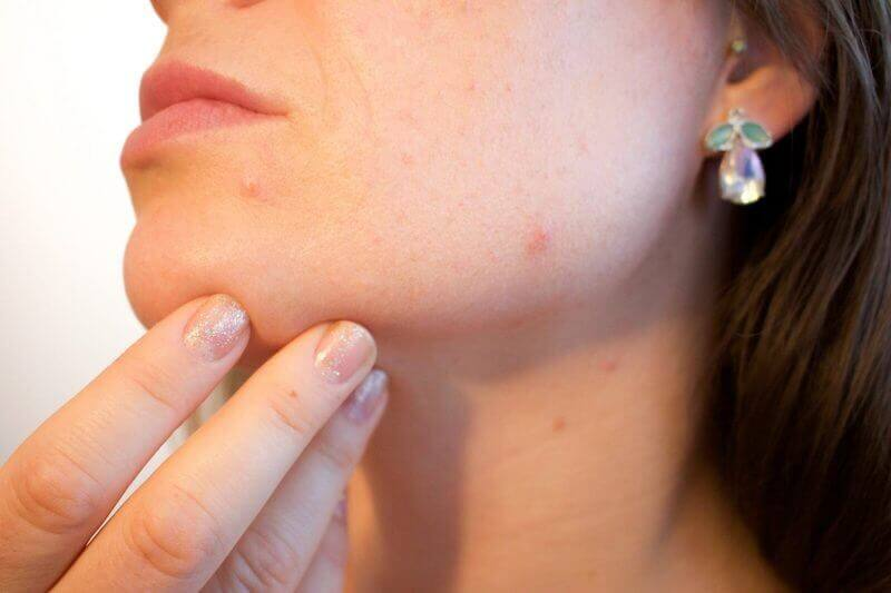 lady with acne